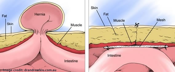 Picture of hernia repair