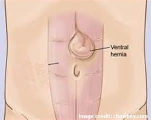Picture of Ventral Hernia